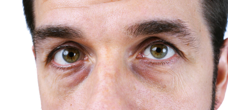 Man's vey tired eyes